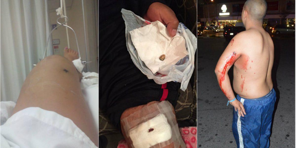Oculta Nuevo León cifra de heridos de bala durante protestas y saqueos