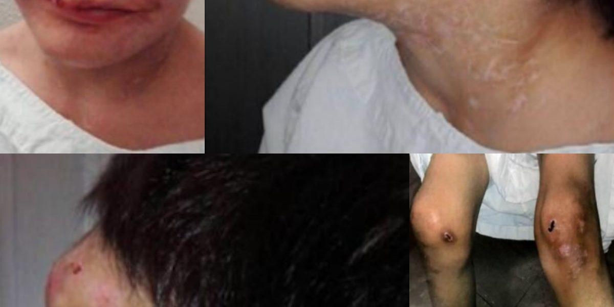Abuela encadenó, cortó y golpeó con un tubo por meses a su nieta de 7 años