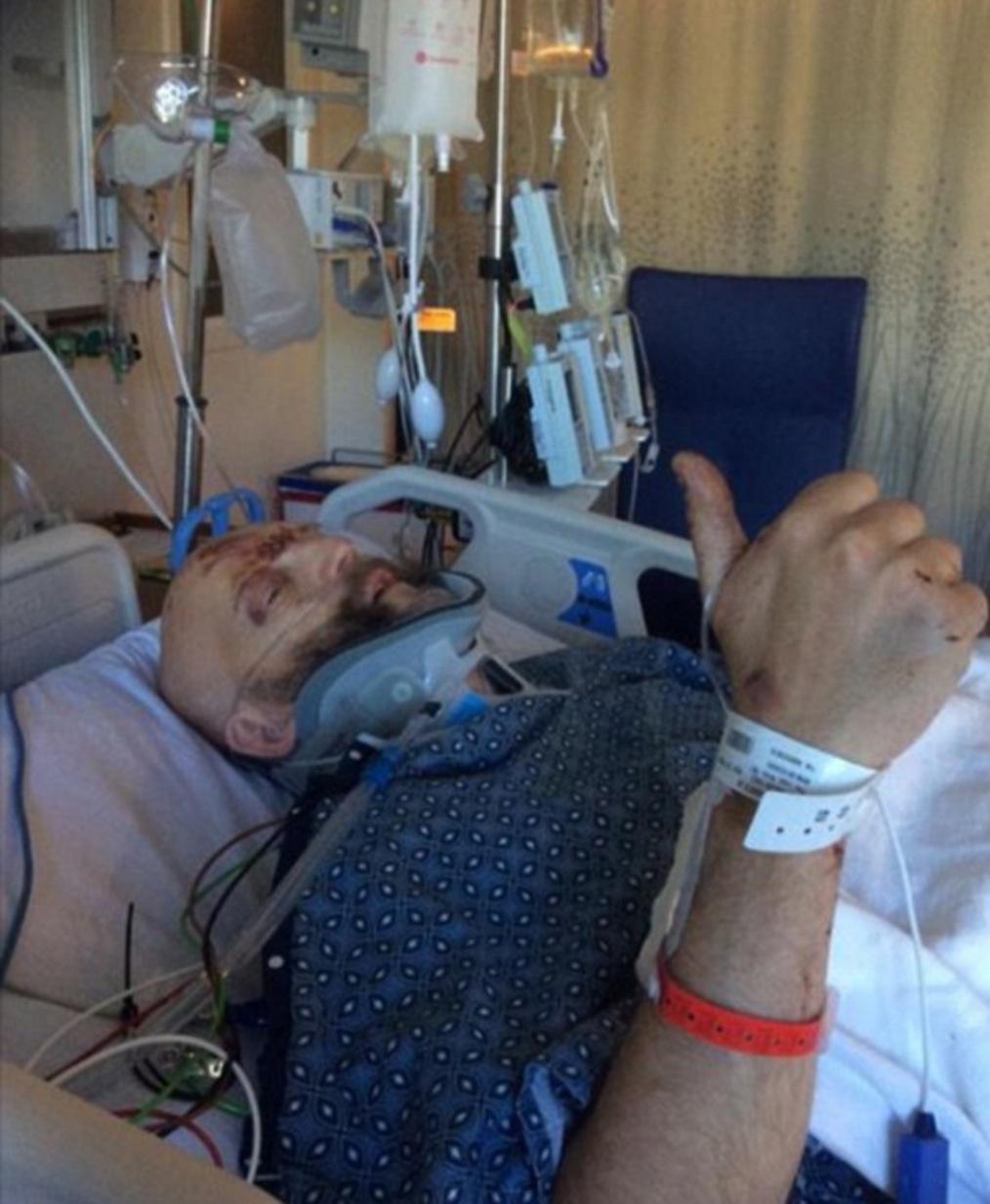 Actor de Harry Potter sufre fuerte accidente vial
