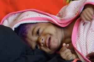UNICEF alerta de 1,4 millones de niños en riesgo de muerte por desnutrición