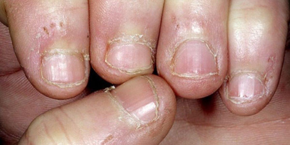 Conoce algunos riesgos de morderse las uñas