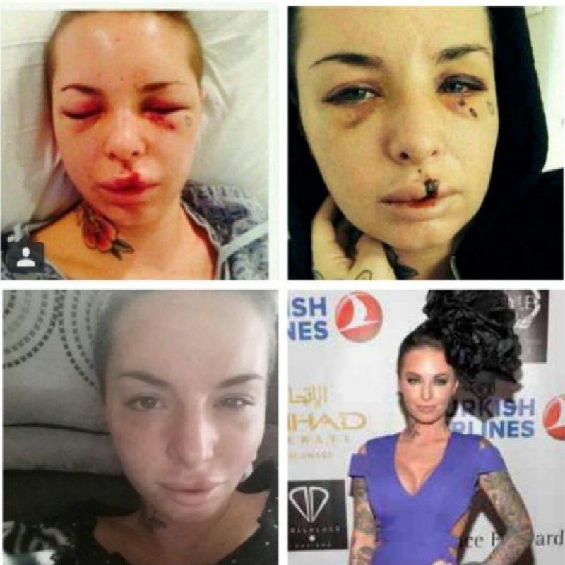"""Christy Mack se hizo famosa en 2014 al postear fotos en las que mostró cómo la había dejado su entonces novio uchador Jon """"War Machine"""" Koppenhaver la golpeara. Foto:vía Instagram/christymack. Imagen Por:"""