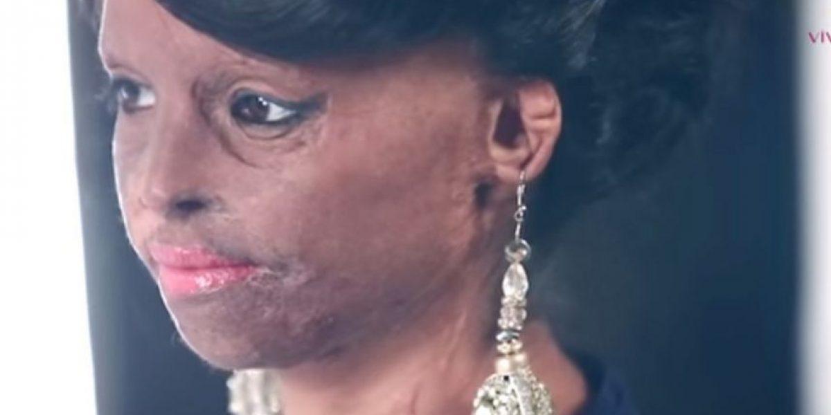 El rostro de las quemadas con ácido que se convirtió en el rostro de la moda