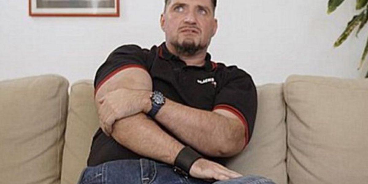 Este hombre llevó la cirugía plástica masculina a un nuevo nivel