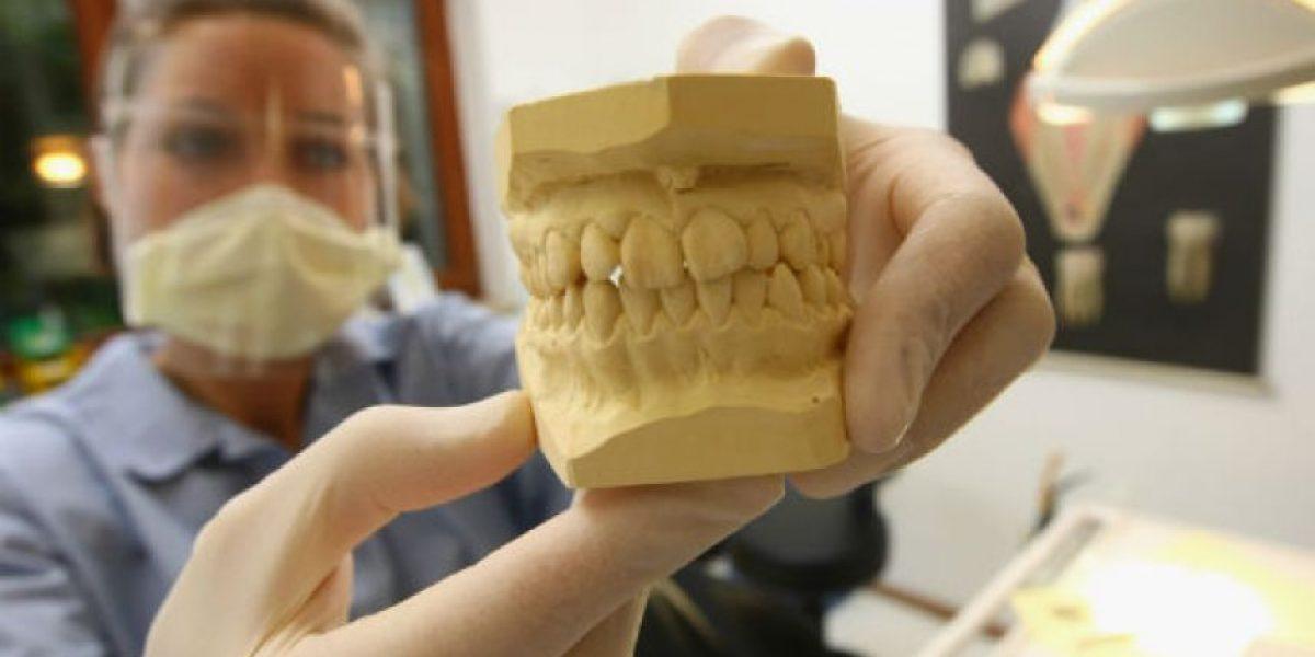 5 cosas que debes saber sobre los implantes dentales