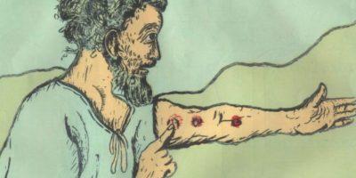 7. Lepra: es una enfermedad infecciosa deformante que tiene 4 mil años de edad. Foto:vía Flickr. Imagen Por: