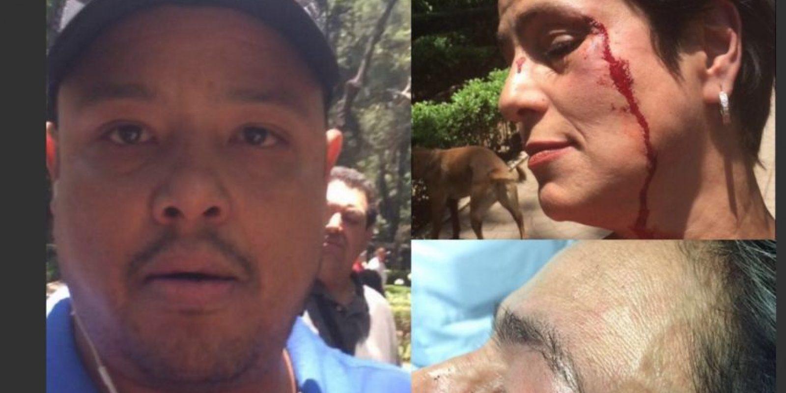 La actriz denunció ser golpeada por el sujeto Foto:twitter.com/americagabriell/. Imagen Por: