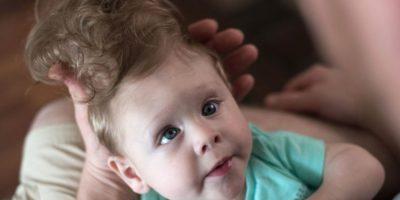 Foto:Hospital Infantil de Boston. Imagen Por: