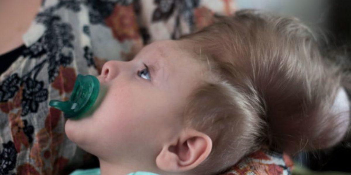 Bebé sobrevive tras nacer con cerebro fuera del cráneo