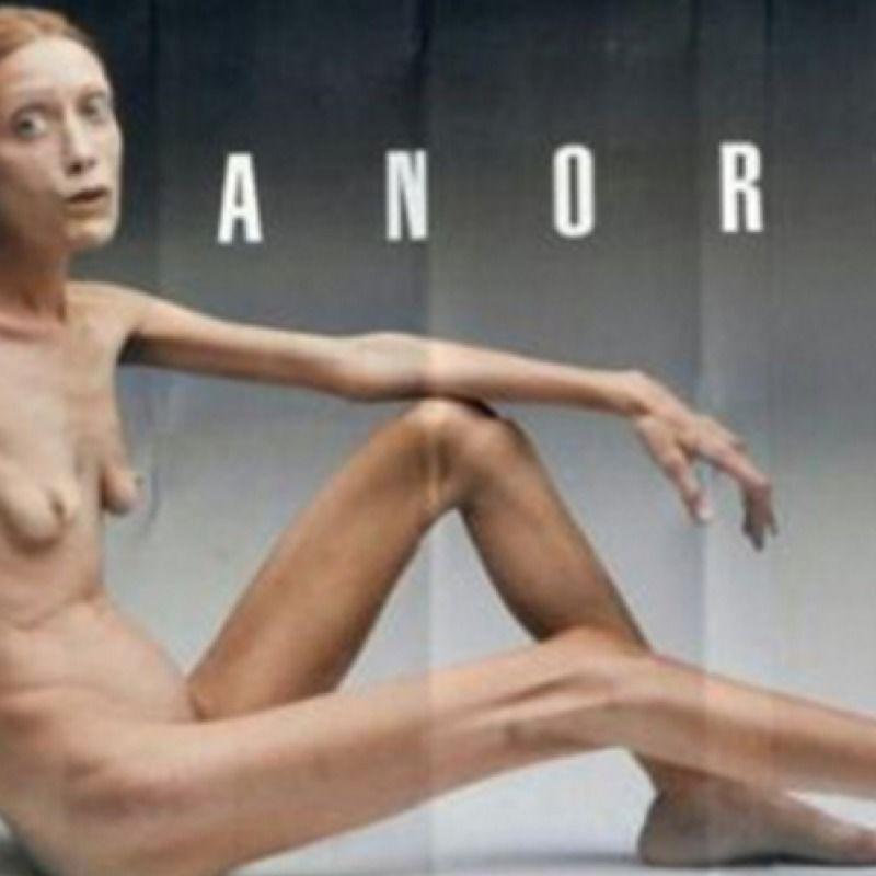 Las mató la anorexia. Imagen Por: Getty Images