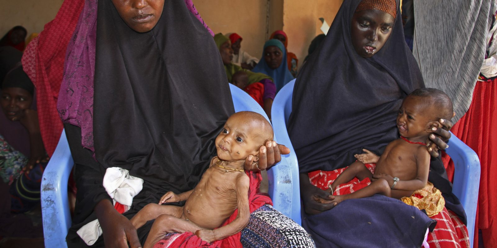 © Copyright 2017 The Associated Press. All rights reserved.. Imagen Por: En esta foto, Ali Hassan, un bebé desnutrido de 9 meses de edad (izquierda), es sostenido por su madre Fadumo Abdi Ibrahim. En la derecha, Habiba Mohamed Aden sostiene a su bebé Mohamud Ahmed, de 6 meses de edad, en un centro de alimentación en un campamento en Mogadishu, Somalia. (Foto de AP / Farah Abdi Warsameh)