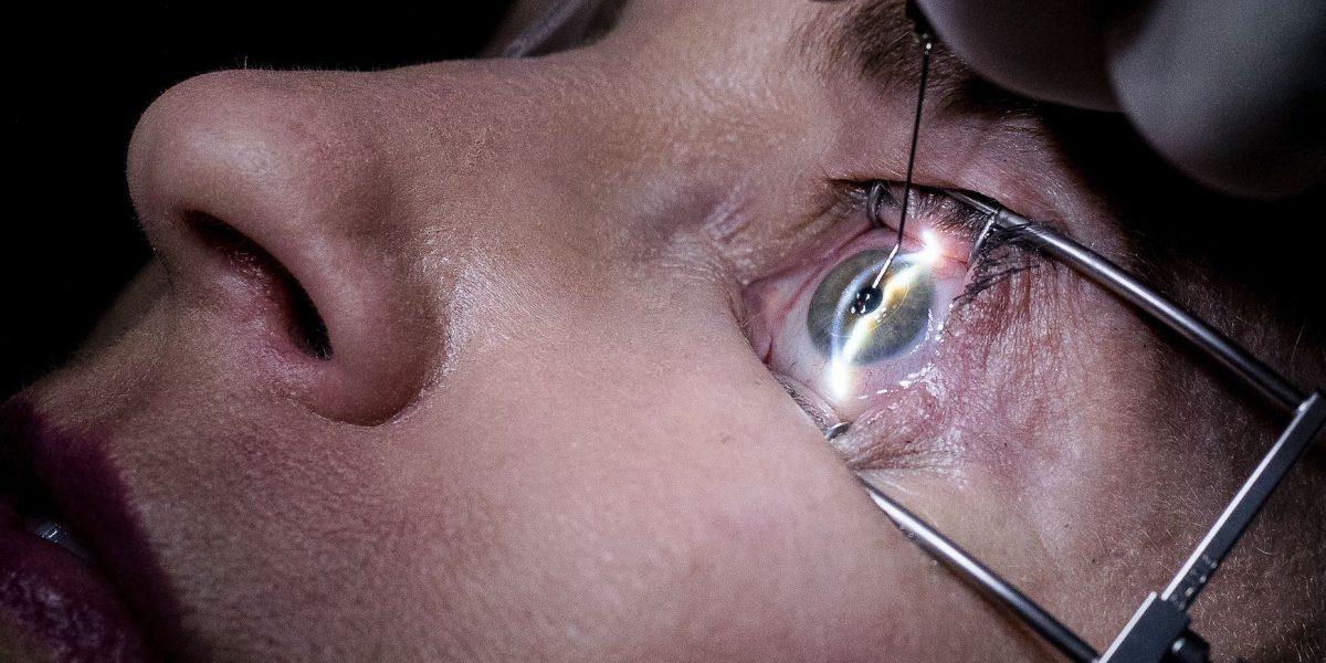 Nuevo implante busca aliviar la visión borrosa