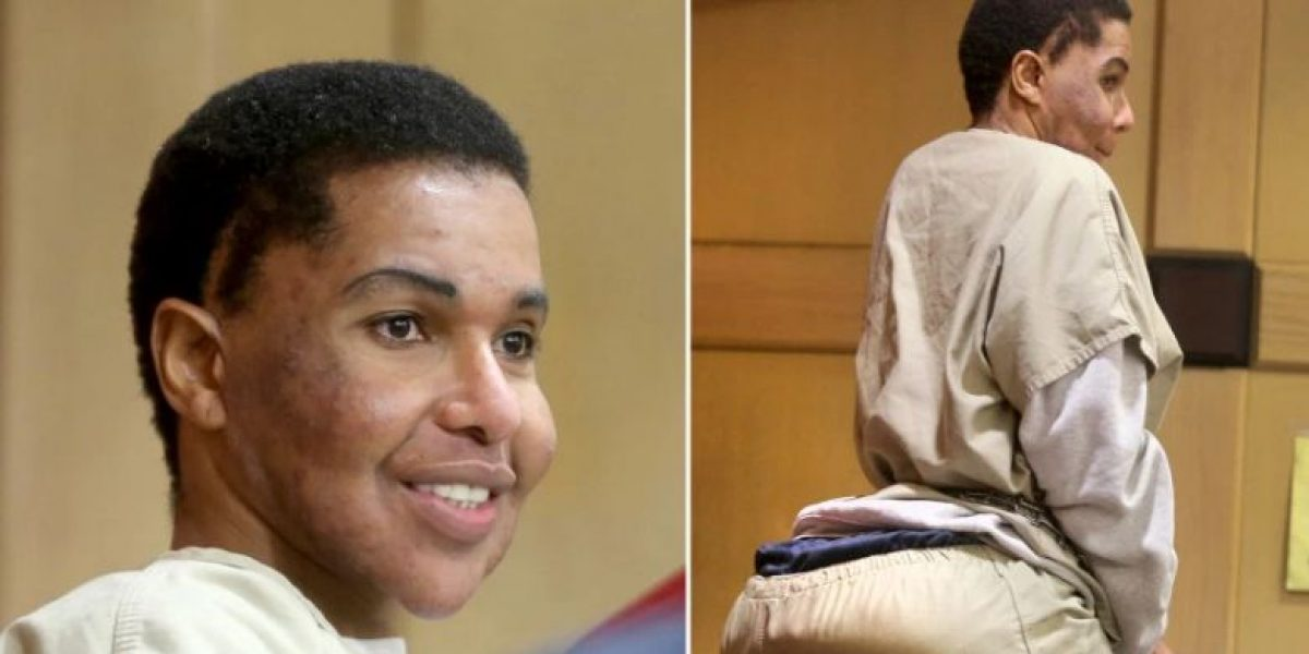 Diez años de cárcel por inyectar cemento a pacientes