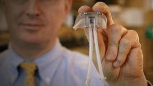 Este riñón biónico hará que la hemodiálisis pase a la historia