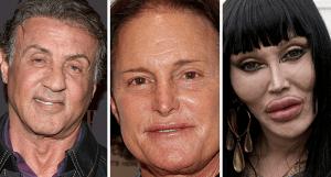 8 de las perores cirugías plásticas de celebridades masculinas