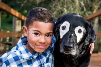 Amigos que salvan: este perro sacó de la depresión a un niño con vitiligo