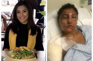 Su cumpleaños 21 se convirtió en un infierno debido a un ataque con ácido